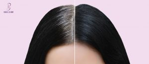 أسباب ظهور الشعر الأبيض في العشرينات