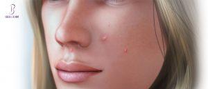 سبب ظهور الحبوب في الوجه بشكل مفاجئ
