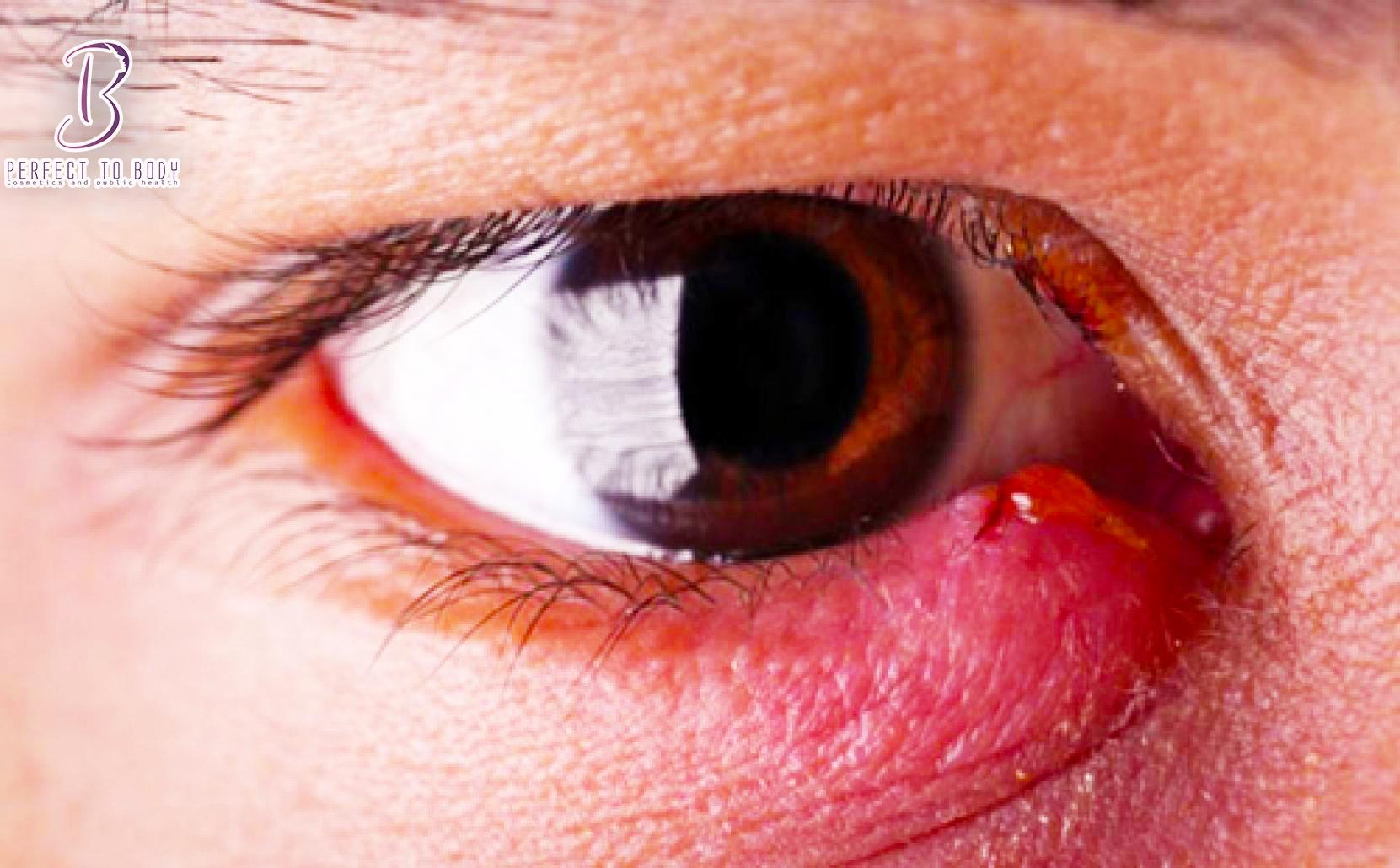الفرق بين شحاذ العين والكيس الدهني