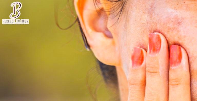 كيفية زيادة صبغة الميلانين في الشعر