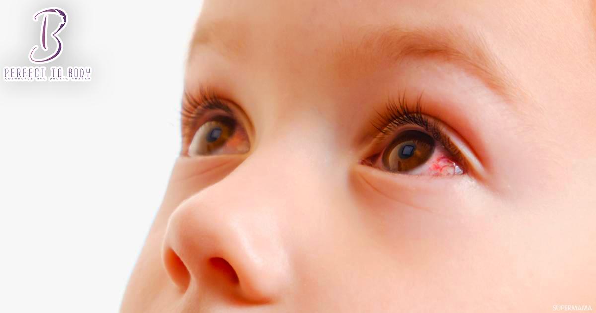سبب احمرار جفن العين العلوي عند حديثي الولادة