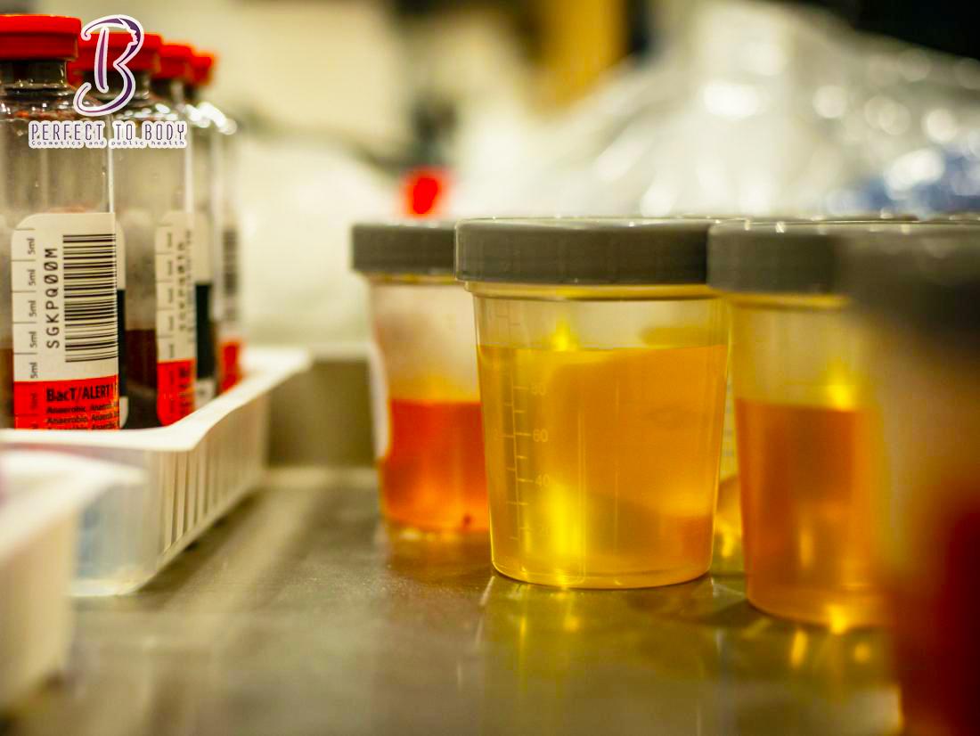 ما هى أسباب إصفرار البول وطريقه العلاج بالأعشاب