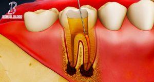 مسكن ألم عصب الأسنان