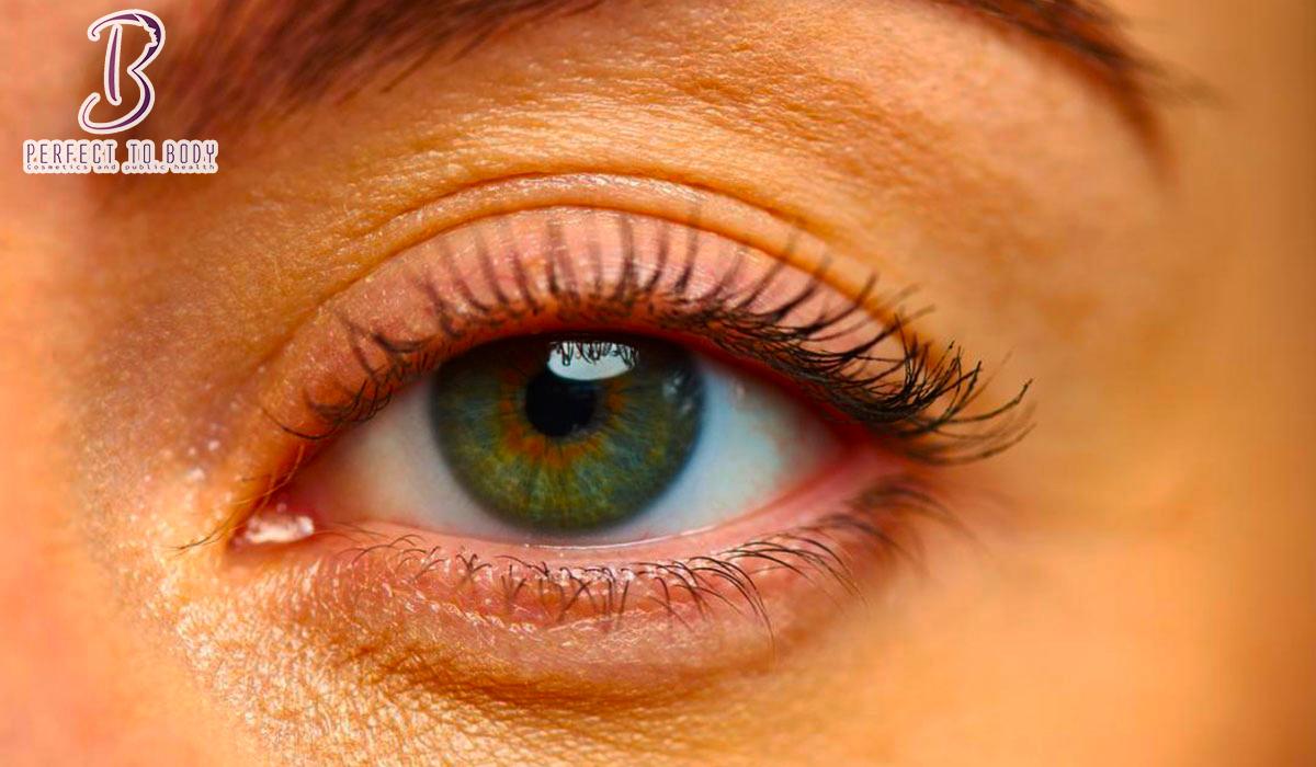 أسباب ظهور حبوب داخل جفن العين العلوي عند الأطفال