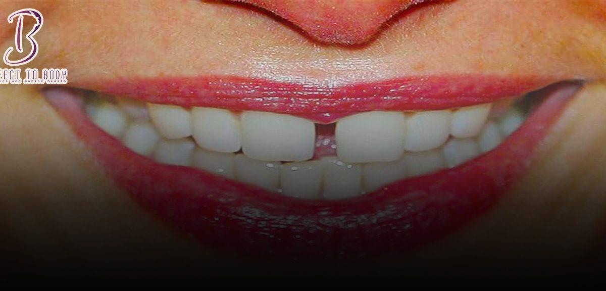 أبرز طرق إزالة جير الأسنان في المنزل