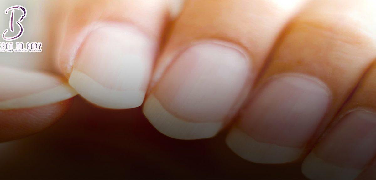 طرق علاج فطريات الأظافر