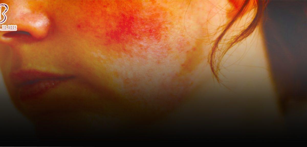 علاج حروق الوجه من الكريمات - perfect2body.com - برفكت توبادي